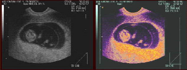 Ultrasound image. Embryo